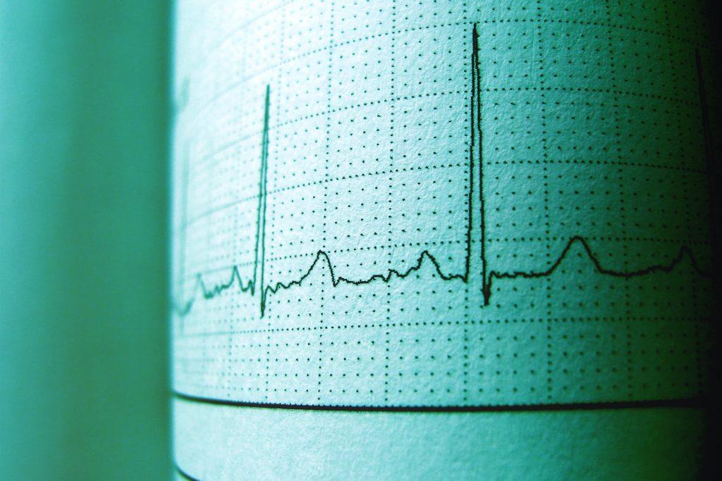 New symptoms of Heart Diseases In Women–be careful